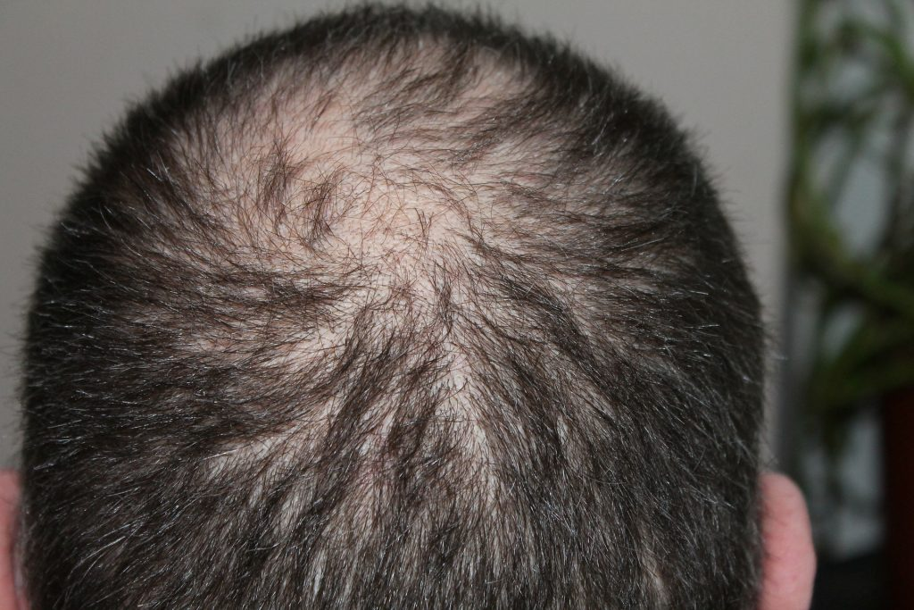prevent hair loss 1024x683 - Fantastic Fixes For Dealing With Hair Loss