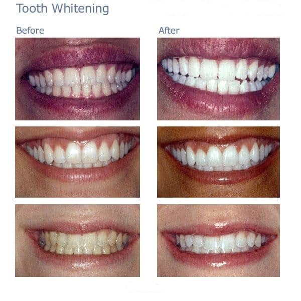 4429301694 bc1dc7e48a o - Dental Procedures That Can Brighten Your Smile