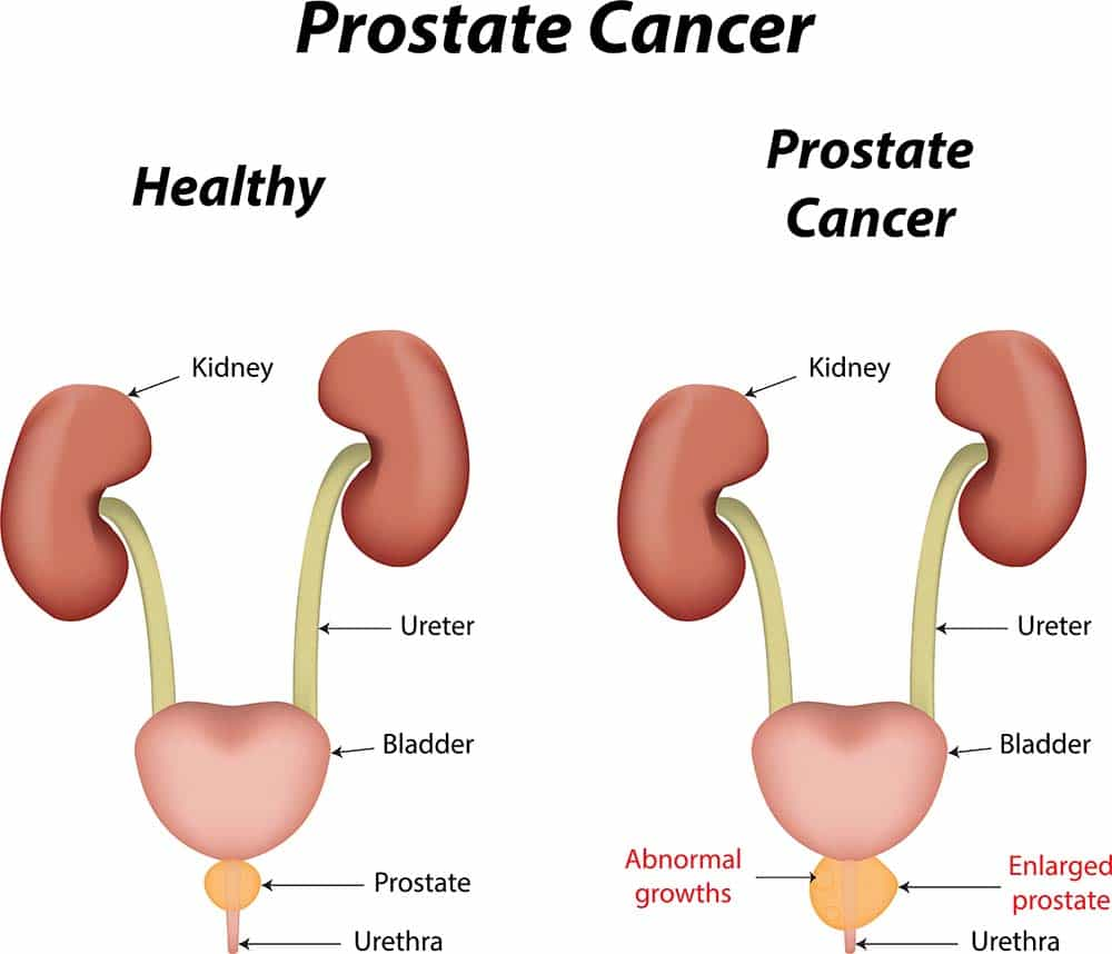 compare healthy protate to cancerous - Different Types of Treatment For Prostate Cancer