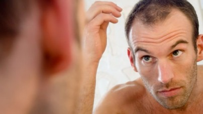 Slowing Down Hair Loss – What Works and What Doesn't