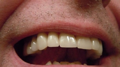 7 Ways to Help You Get Better Teeth