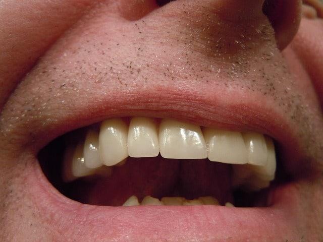 teeth 414489 640 - 8 Immaculate Grooming Tips for Grooms