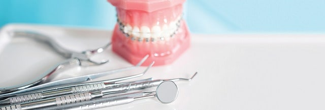 32792656762 e0c871665b z - What are Adult Orthodontics?