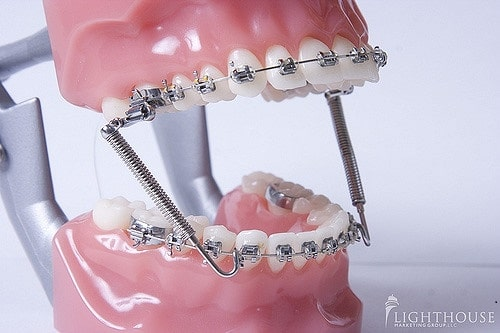 3617899598 93453bcbcd z - Deal with Childhood Teeth Issues Quickly with Crocodile Orthodontics