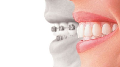 Deal with Childhood Teeth Issues Quickly with Crocodile Orthodontics