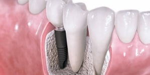 What Do Dental Implants Do?