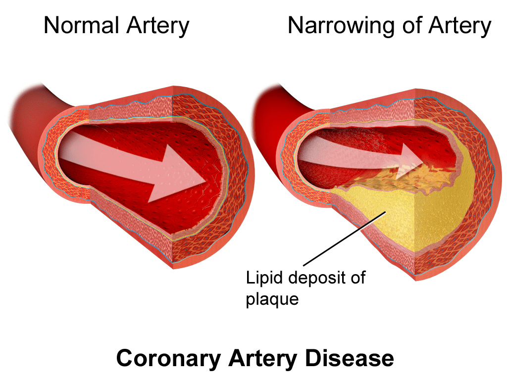 Coronary Artery Disease 1024x768 - 5 Health Issues You Should Know More About