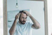 Treating Hair Loss