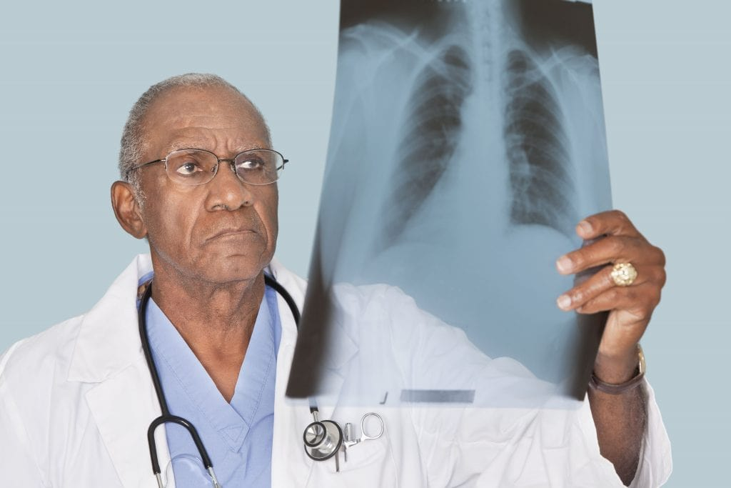 lungs x ray 1024x683 - Knowing Fungal Pneumonia, its Treatment, and Voriconazole