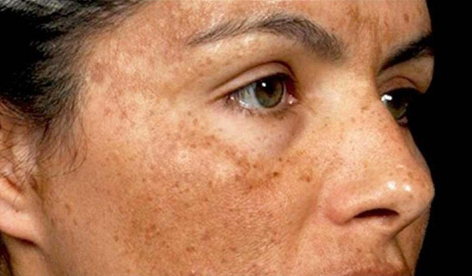 Is Hyperpigmentation Safe to be Left Alone - Is Hyperpigmentation Safe to be Left Alone?