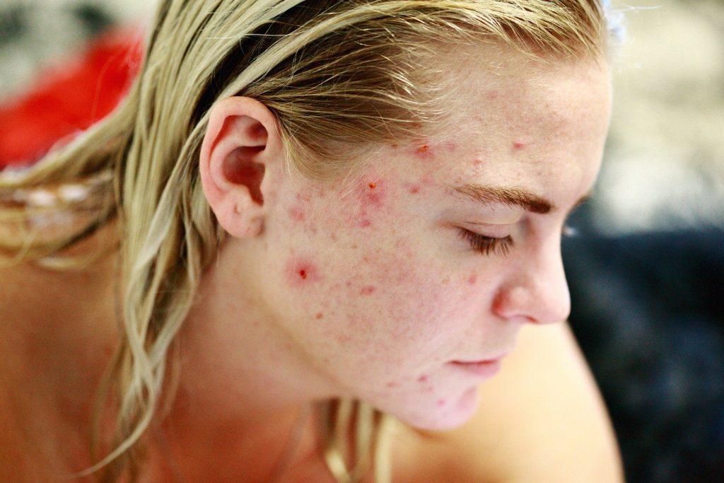 CBD Oil for Acne 1024x683 - CBD Oil Benefits for Skin