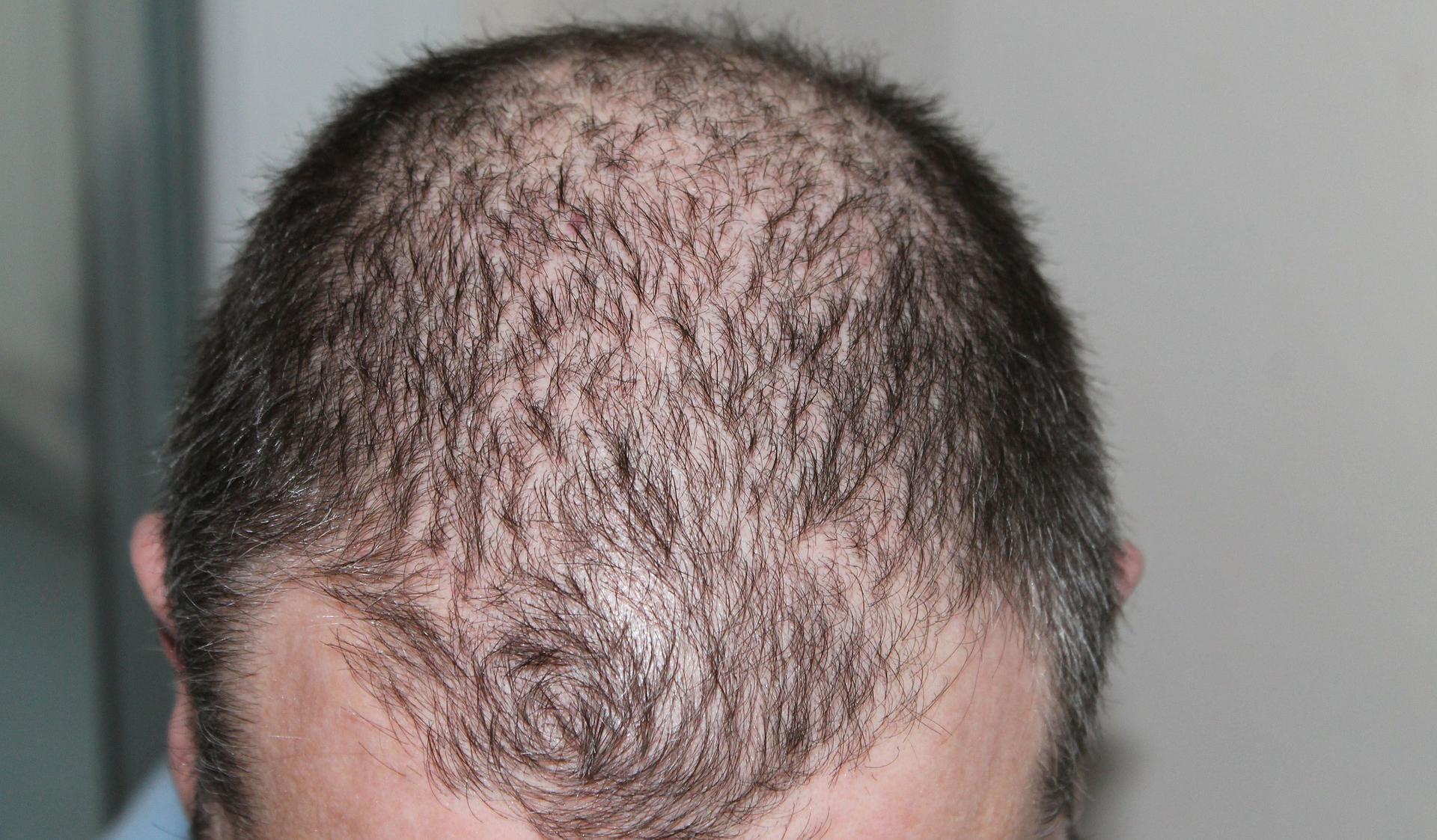 Hair Transplant Clinics