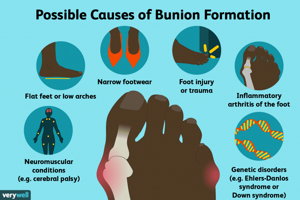 bunion formation 1024x683 - How Effective are Bunion Correctors