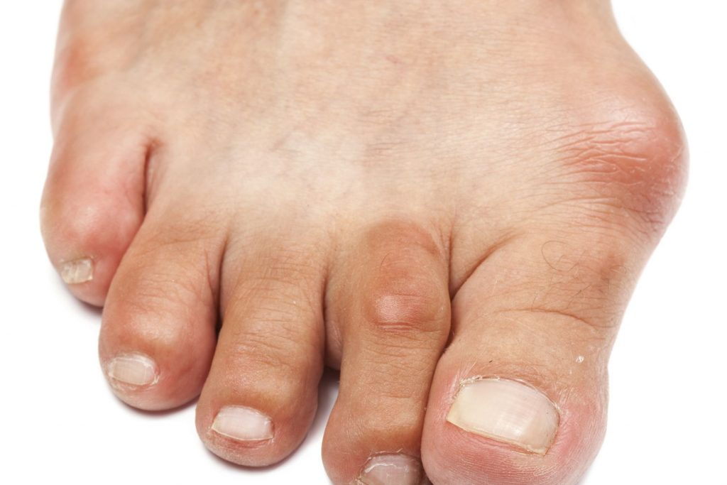 bunions 1024x683 - How Effective are Bunion Correctors