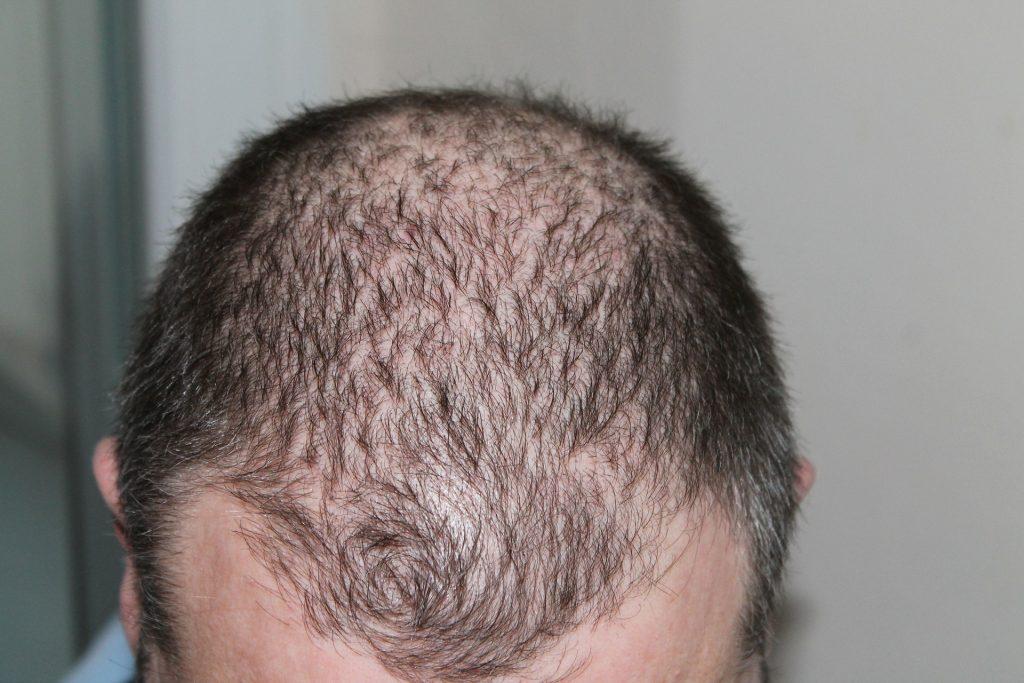Male Pattern Baldness 1024x683 - Tips to Combat Male Pattern Baldness