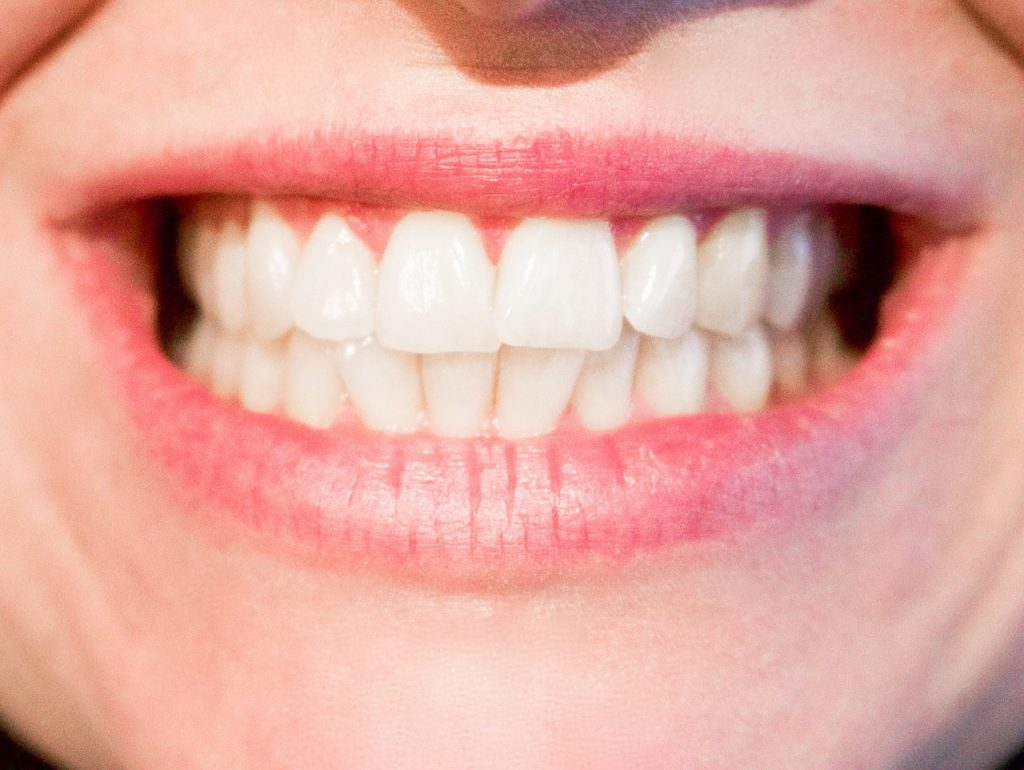 Teeth Whitening 1024x770 - Is Teeth Whitening Right For You?