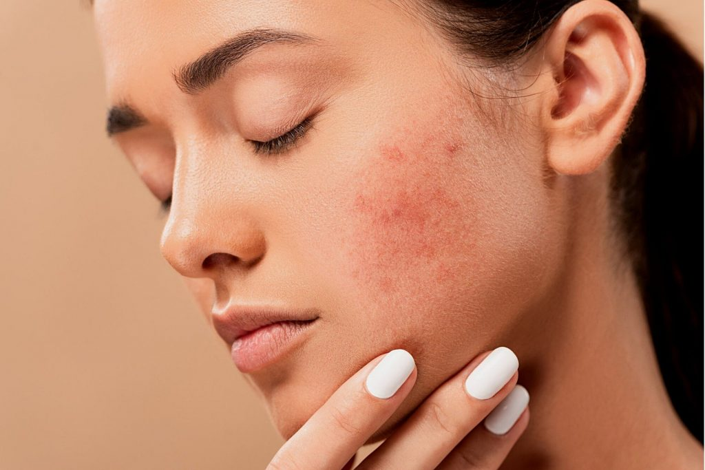 gym induced acne 1024x683 - Three tips for dealing with gym-induced acne