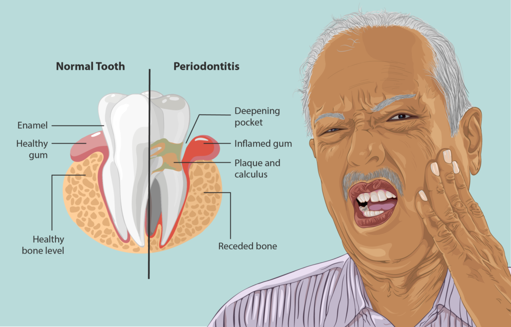 Depiction of a Periodontitis patient 1024x655 - What Is Gum Disease and What Is A Periodontist Role?