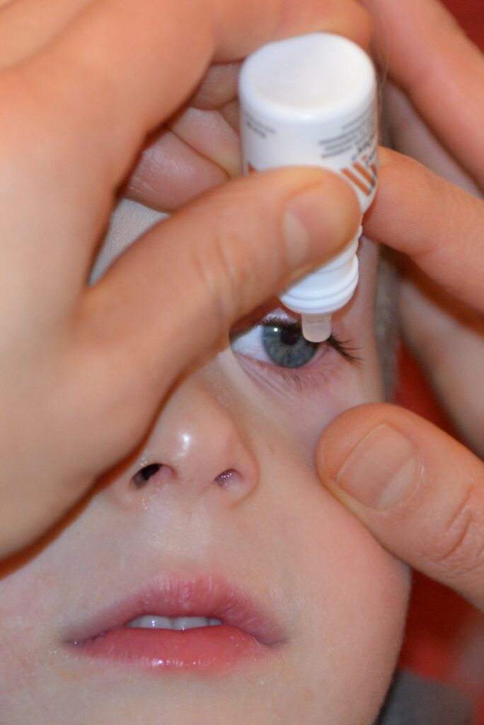 mom dripping eye drops to the baby 684x1024 - Some Common Causes of Blurry Vision